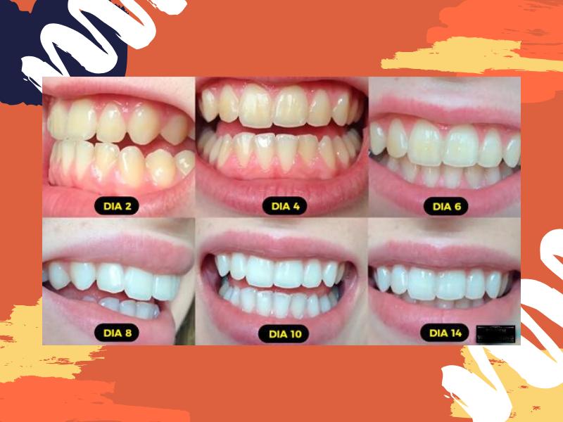 Resultados do carvão ativado nos dentes