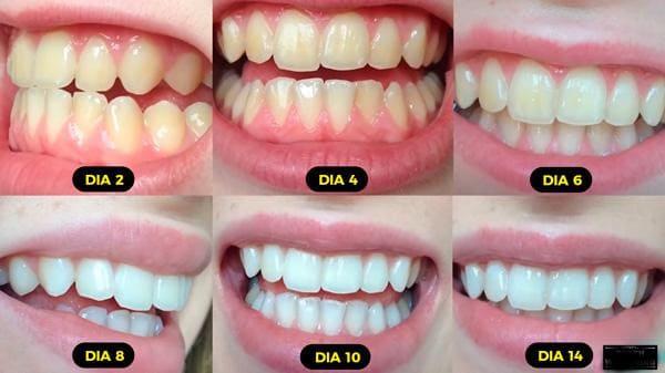 como clarear os dentes em 1 minuto